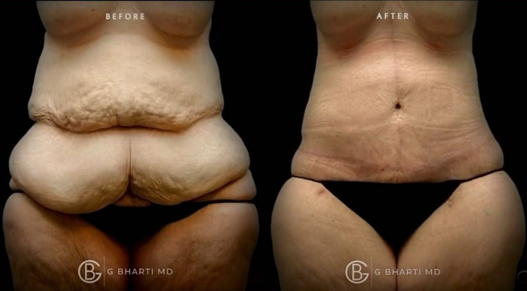 plastic surgeon doctor before and after tummy tuck