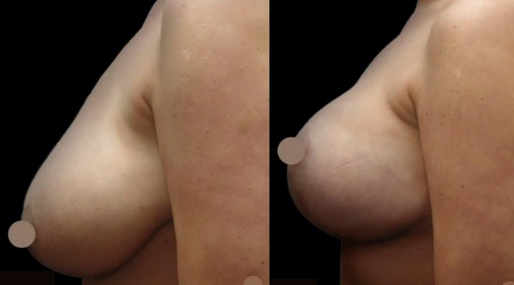 plastic surgeon doctor before and after breast surgery