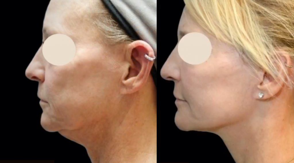 plastic surgeon doctor. before and after facial surgery